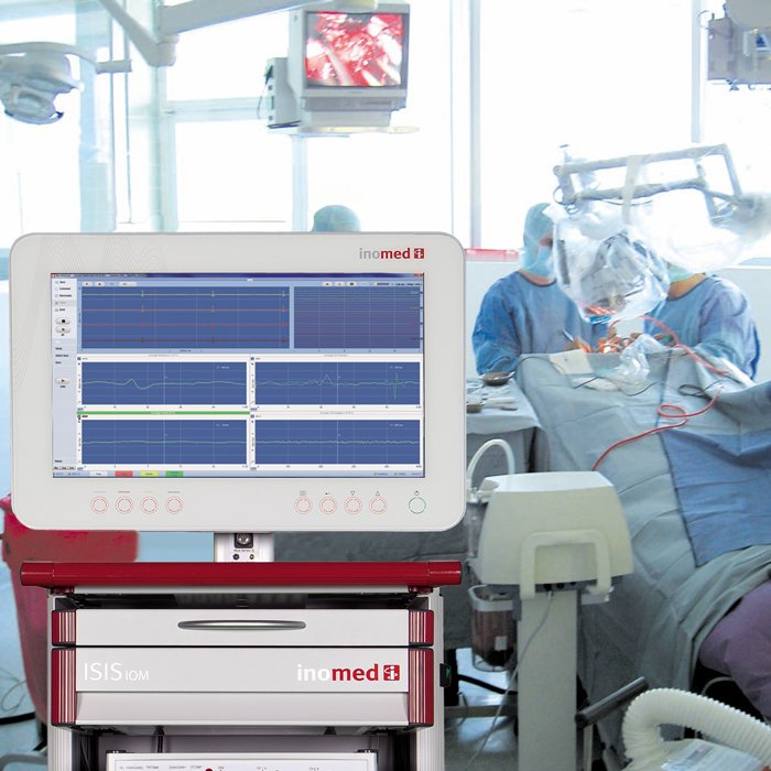 Intra-Operative Monitoring